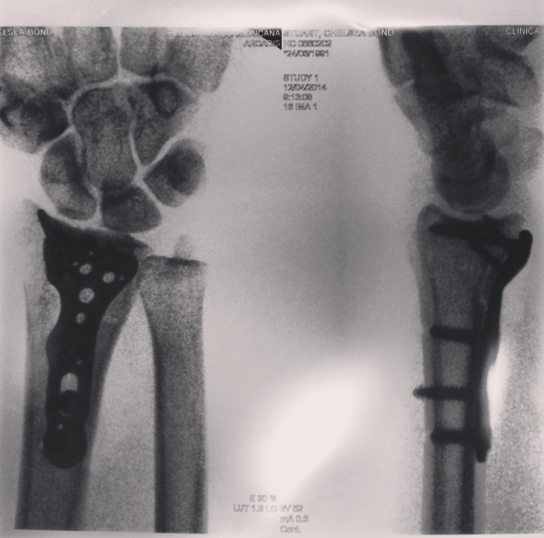 X-ray after surgery with my shiny, new titanium plate and screws!